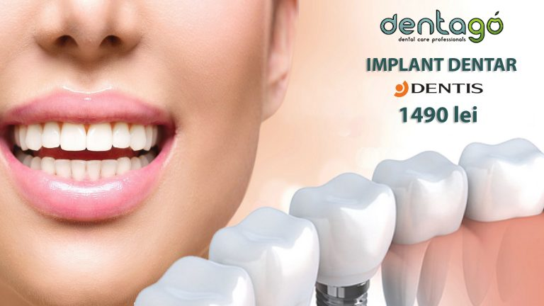 implant dentar dentis